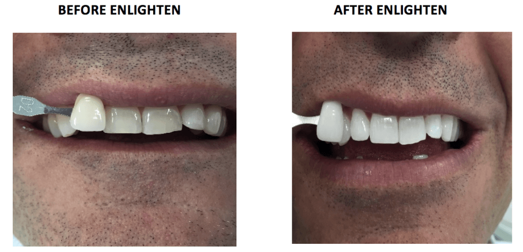 Before and after enlighten teeth whitening in liverpool street