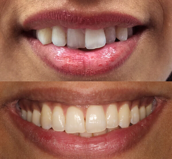 Invisalign example from Bishopsgate Dental in London