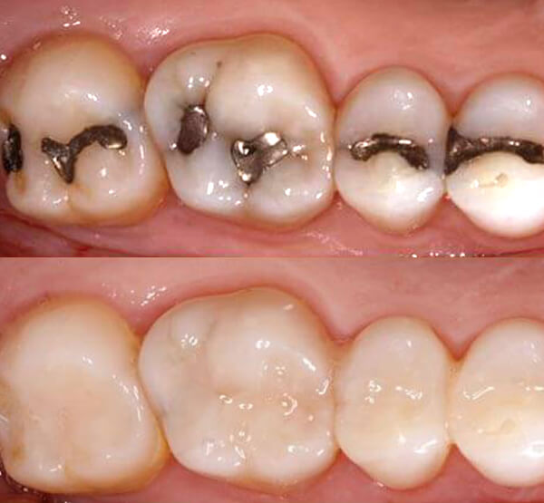 Examples of white fillings at Bishopsgate Dental Care in London