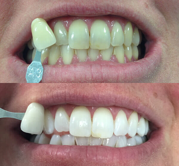 Teeth Whitening Liverpool Street London Stunning Results